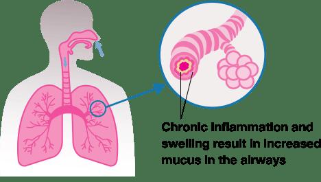 Chronic Bronchitis Graphic