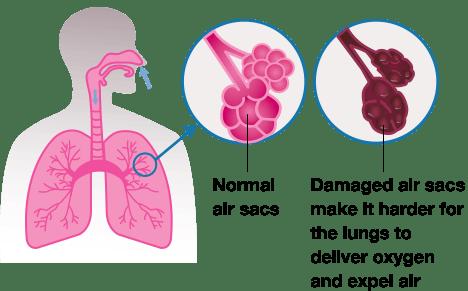 Emphysema Graphic
