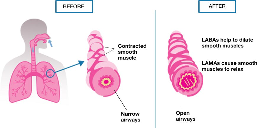 LAMA and LABA Combination Treatments (Dual Bronchodilators)