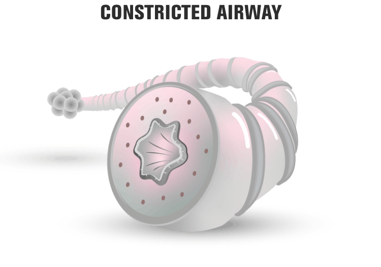 Constricted airway representation