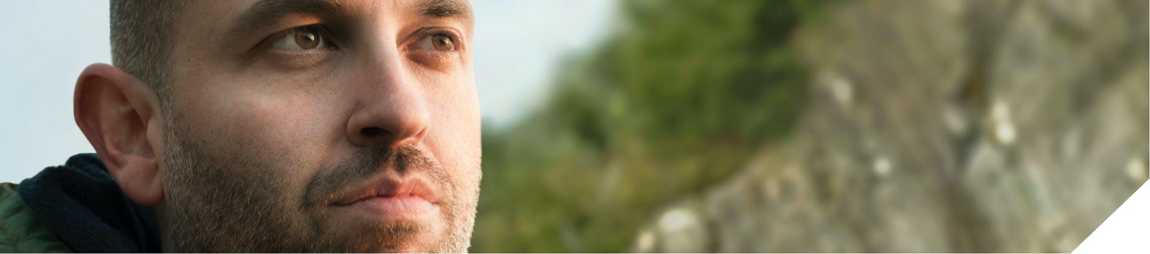 Male with severe eosinophilic asthma comorbid nasal polyps image