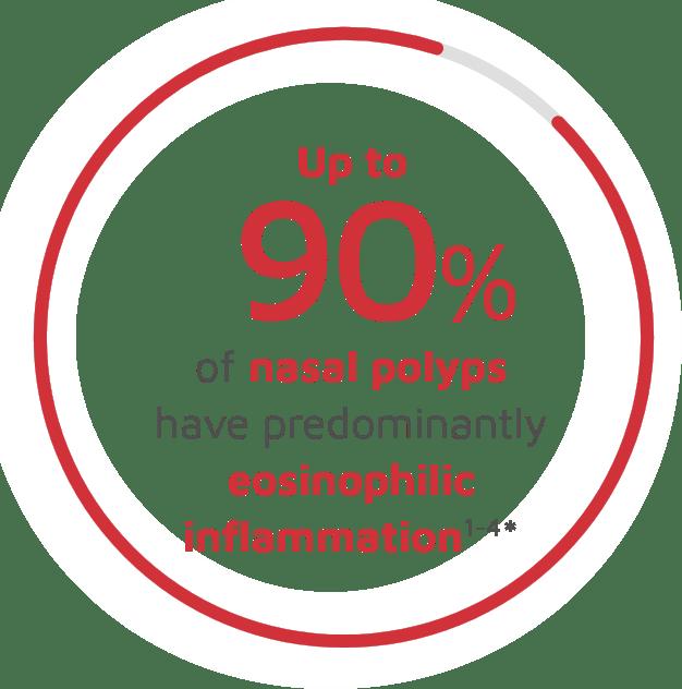 Up to 90% of nasal polyps have predominantly eosinophilic inflammation
