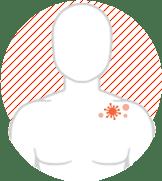 shingles rash symptom image