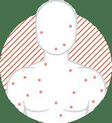 shingles chickenpox image