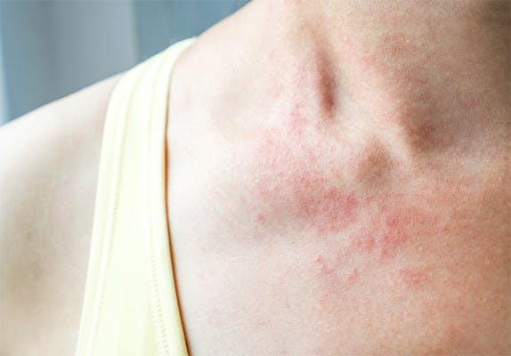 shingles rash on neck and shoulder